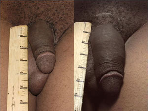ExtenZe penis enlargement before and after photo
